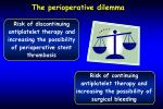 the perioperative dilemma