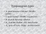 tympanogram types