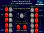 group comparison of local gray matter density