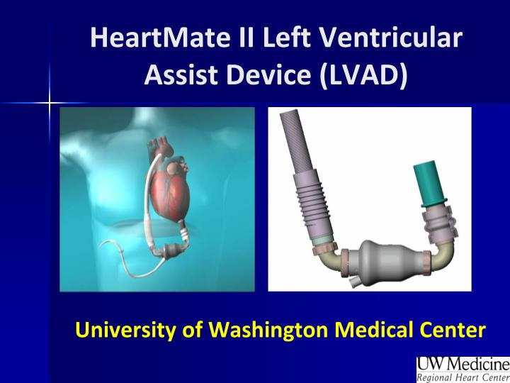 heartmate ii left ventricular assist device lvad n.