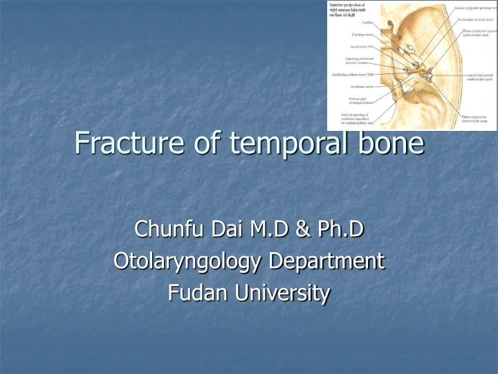 fracture of temporal bone n.