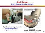 anal cancer high resolution anoscopy