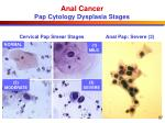 anal cancer pap cytology dysplasia stages
