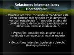 relaciones intermaxilares horizontales