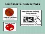 colposcop a indicaciones1