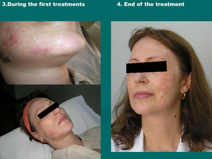 3.During the first treatments