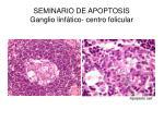 seminario de apoptosis ganglio linf tico centro folicular