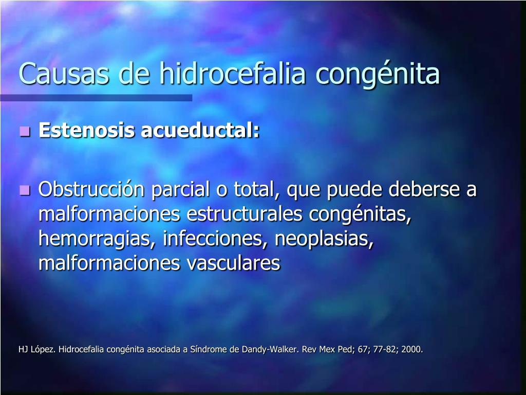 Diagnóstico de hidrocefalia congénita