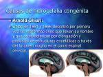 causas de hidrocefalia cong nita12