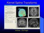 kernel spline transforms2