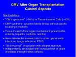 cmv after organ transplantation clinical aspects
