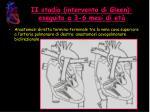 ii stadio intervento di gleen eseguito a 3 6 mesi di et