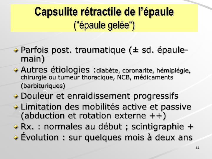 Capsulite rétractile de l'épaule