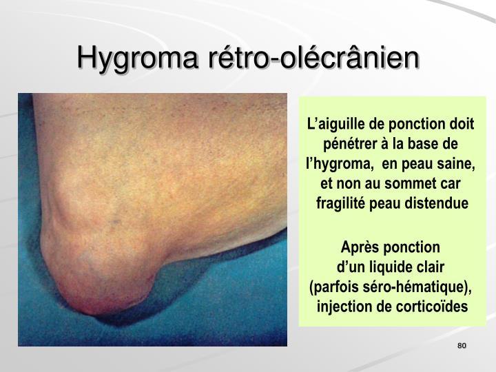 Hygroma rétro-olécrânien