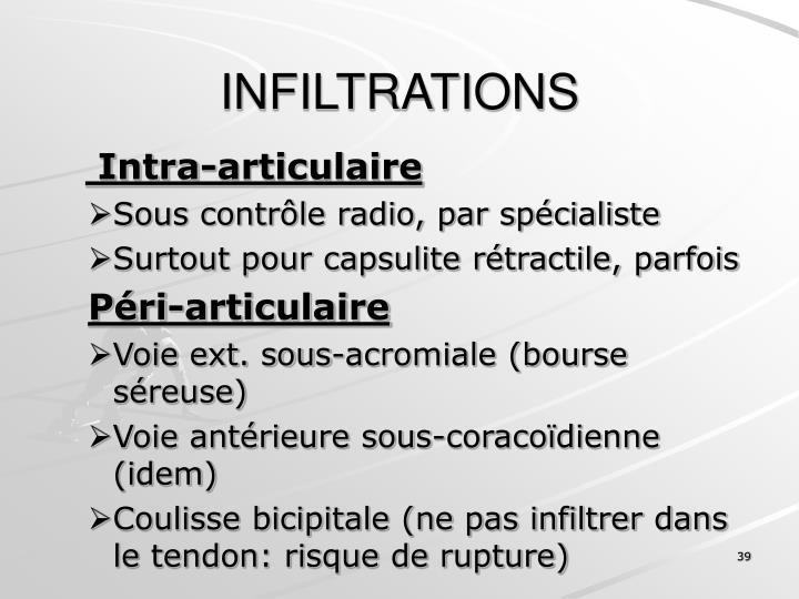 INFILTRATIONS