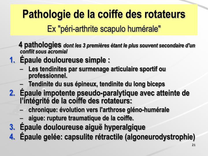 Pathologie de la coiffe des rotateurs