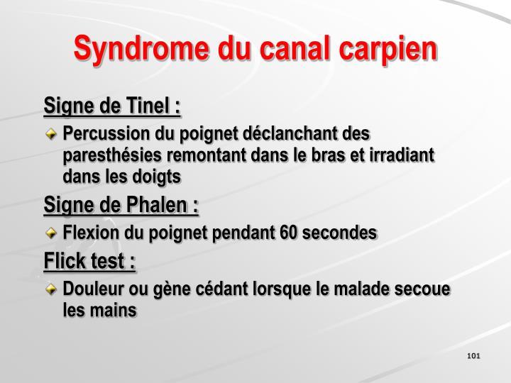 Syndrome du canal carpien