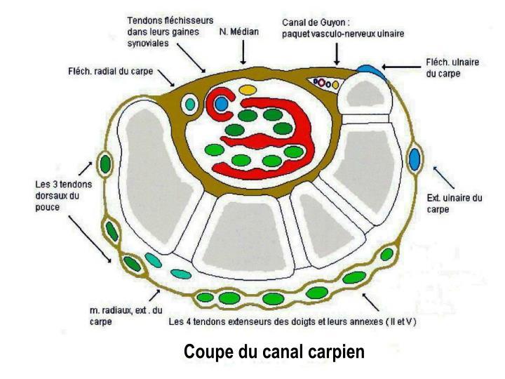 Coupe du canal carpien