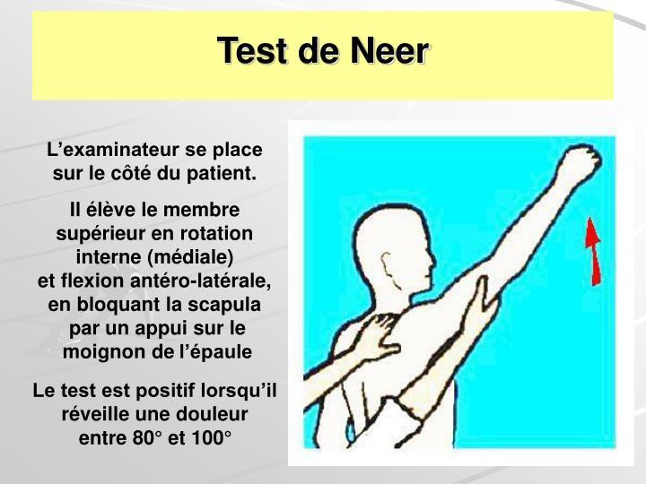 Test de Neer