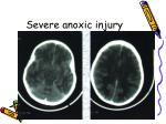severe anoxic injury