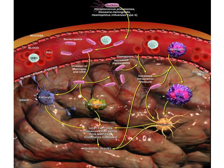 Komplikacije i sekvele bakterijskog meningitisa