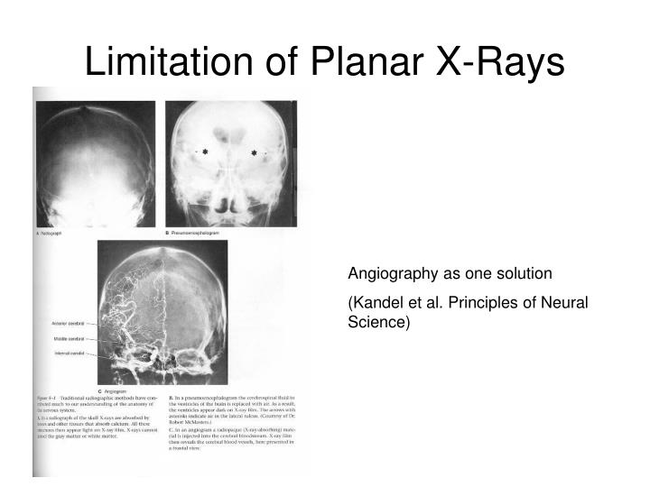Limitation of planar x rays