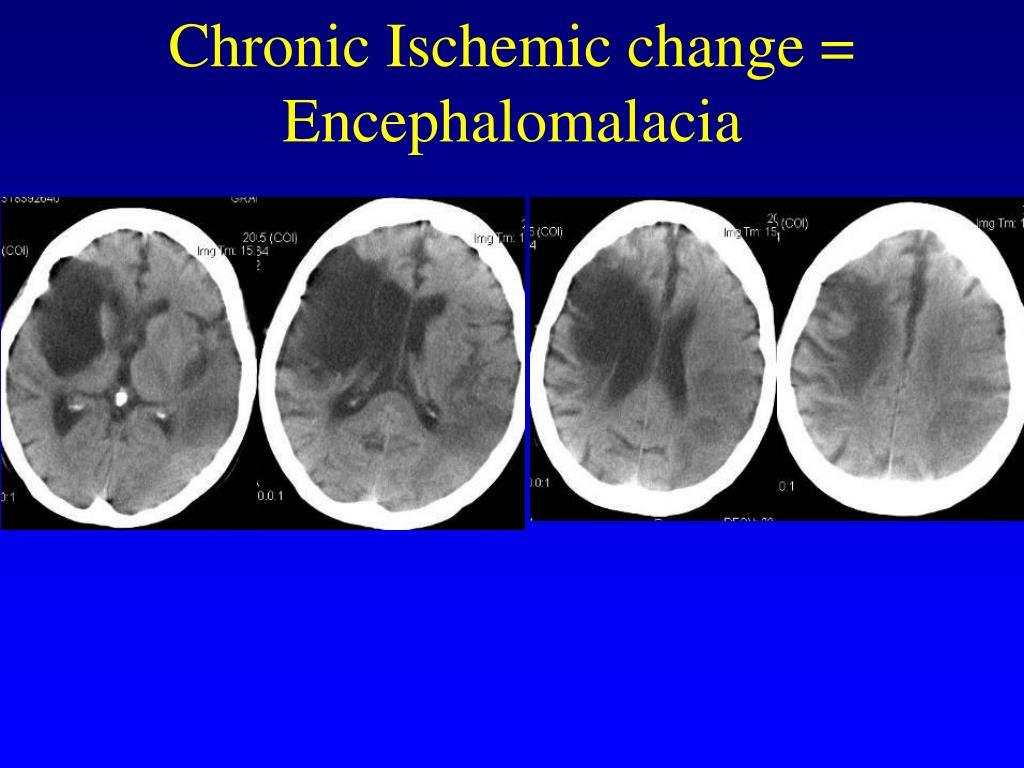 Chronic Ischemic change =