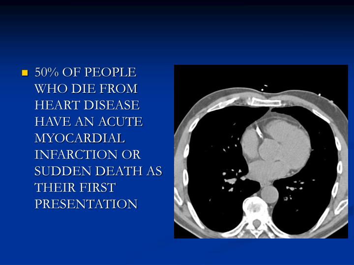 50% OF PEOPLE WHO DIE FROM HEART DISEASE HAVE AN ACUTE MYOCARDIAL INFARCTION OR SUDDEN DEATH AS THEI...