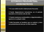 estenosis pielouretral hidronefrosis1