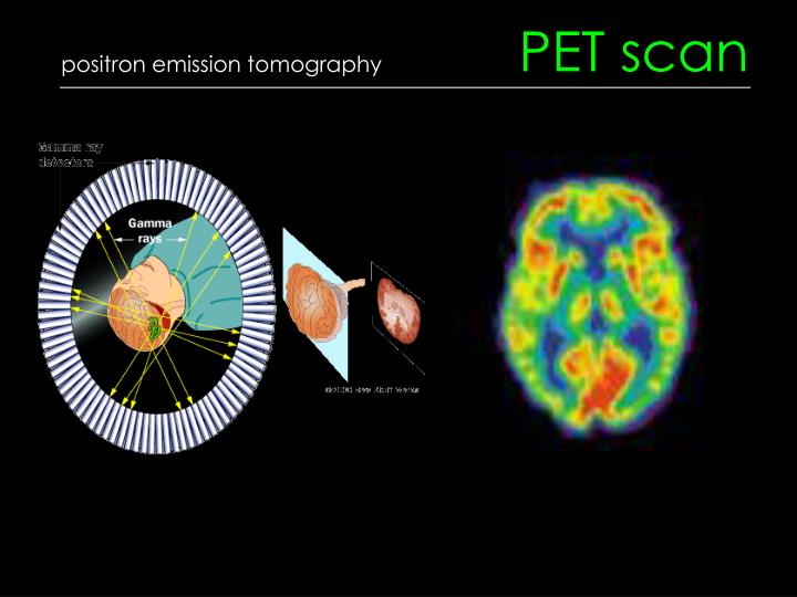 positron emission tomography pet scan A positron emission tomography (pet) scan is done in a hospital nuclear medicine department or at a special pet center by a radiologist or nuclear.