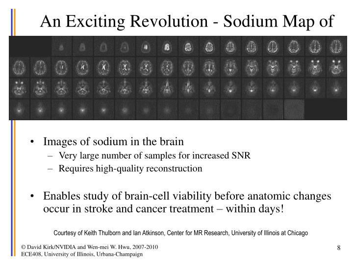 An Exciting Revolution - Sodium Map of the Brain