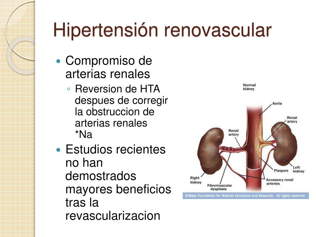 PPT - Hipertensión Arterial Sistémica Secundaria..