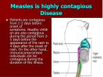measles is highly contagious disease