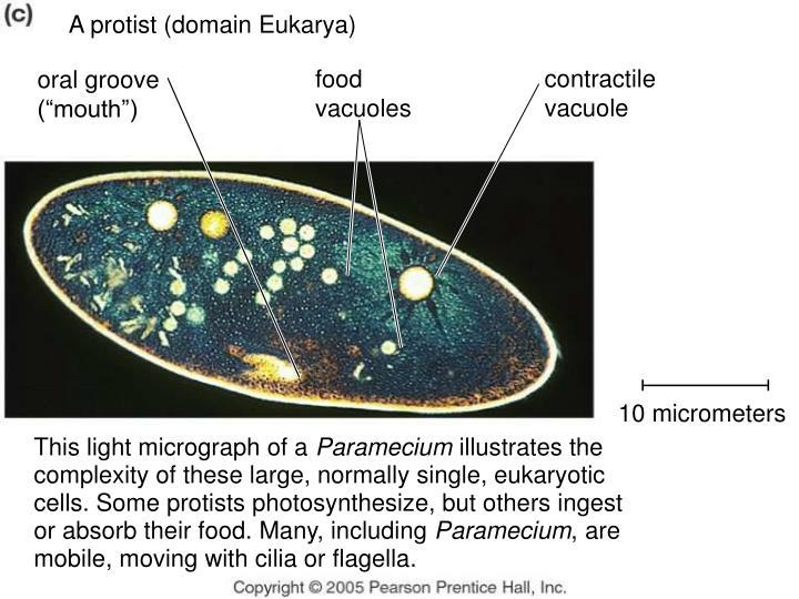 A protist (domain Eukarya)