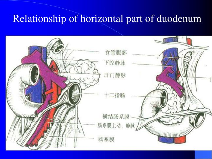 Relationship of horizontal part of duodenum