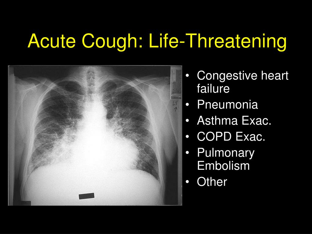 Acute Cough: Life-Threatening