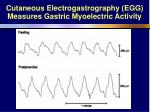 cutaneous electrogastrography egg measures gastric myoelectric activity