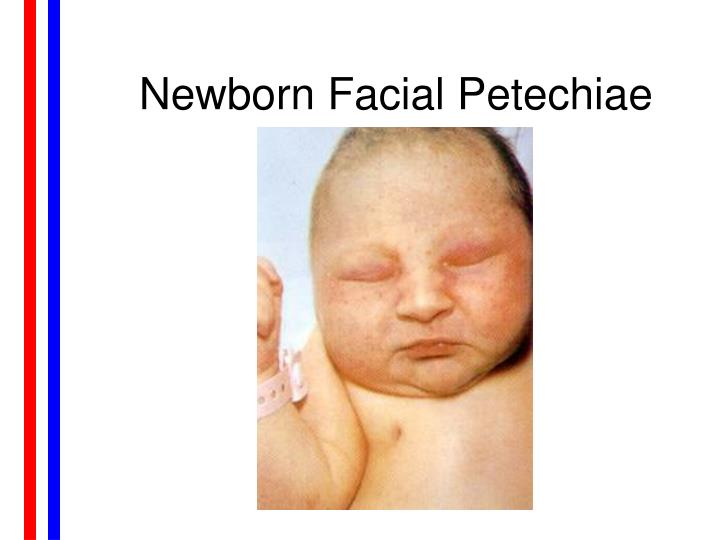 Newborn Facial Petechiae
