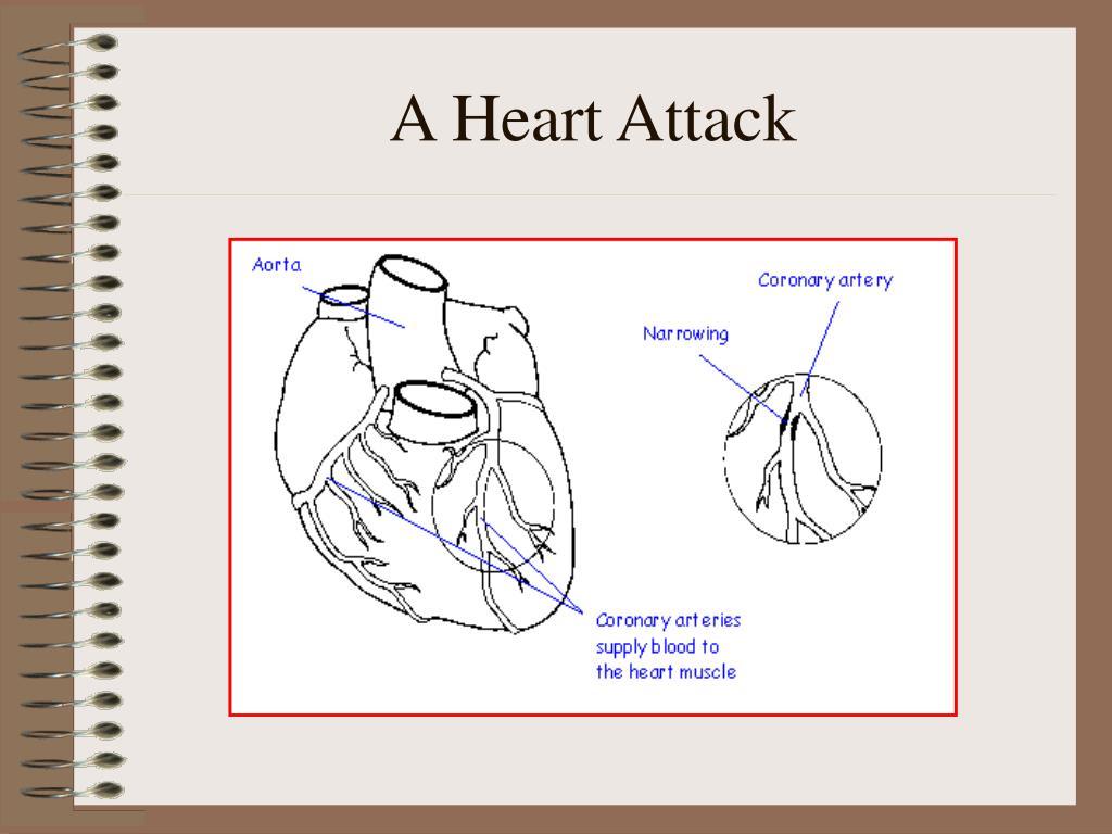 A Heart Attack