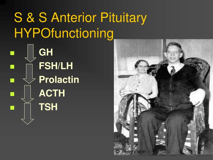 S & S Anterior Pituitary HYPOfunctioning