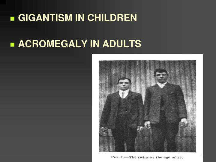 GIGANTISM IN CHILDREN