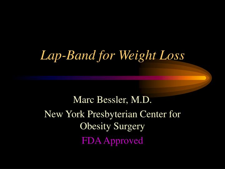 lap band for weight loss n.