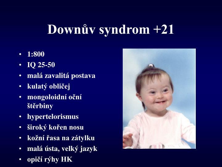 Down v syndrom 21