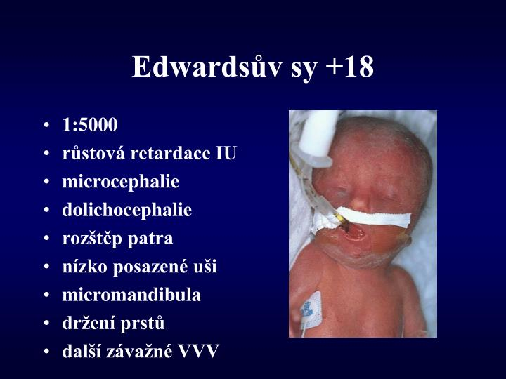 Edwardsův sy +18