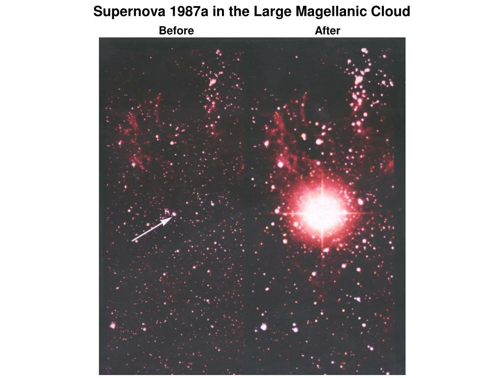 Supernova 1987a in the Large Magellanic Cloud