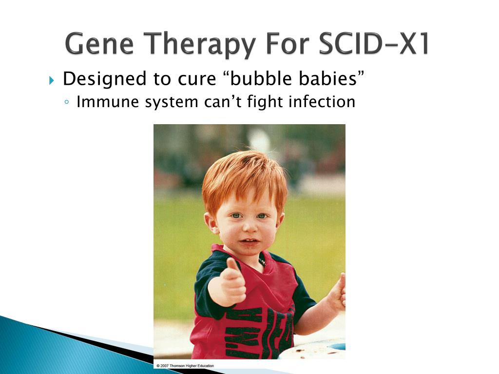 Gene Therapy For SCID-X1
