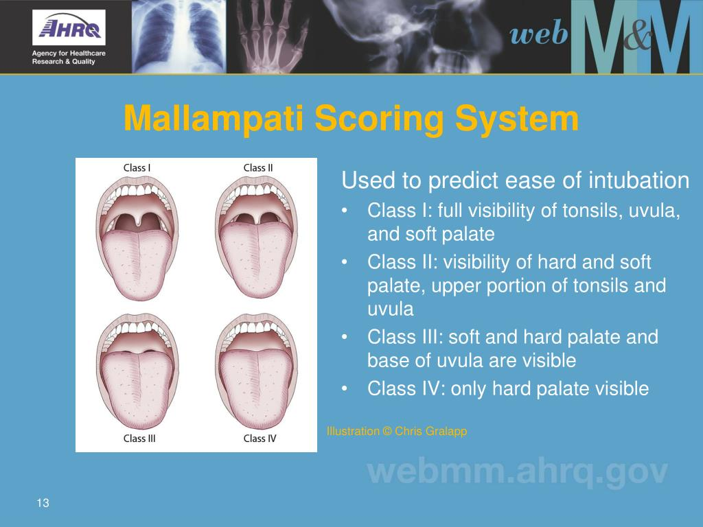 Mallampati Scoring System