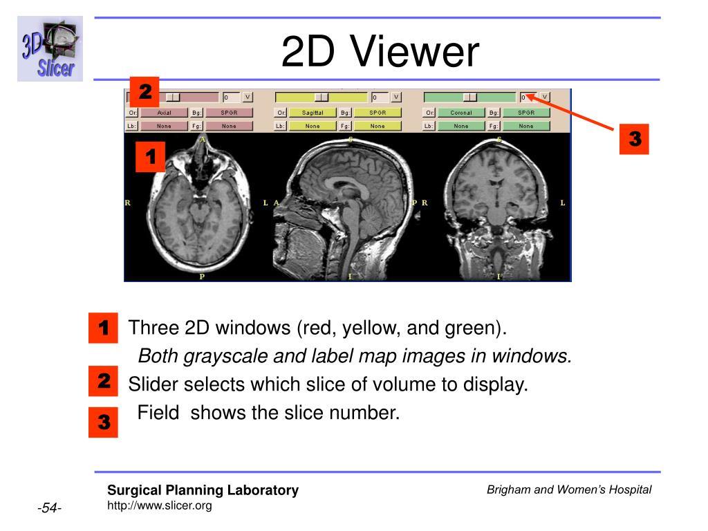 2D Viewer