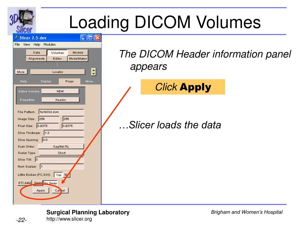 Loading DICOM Volumes