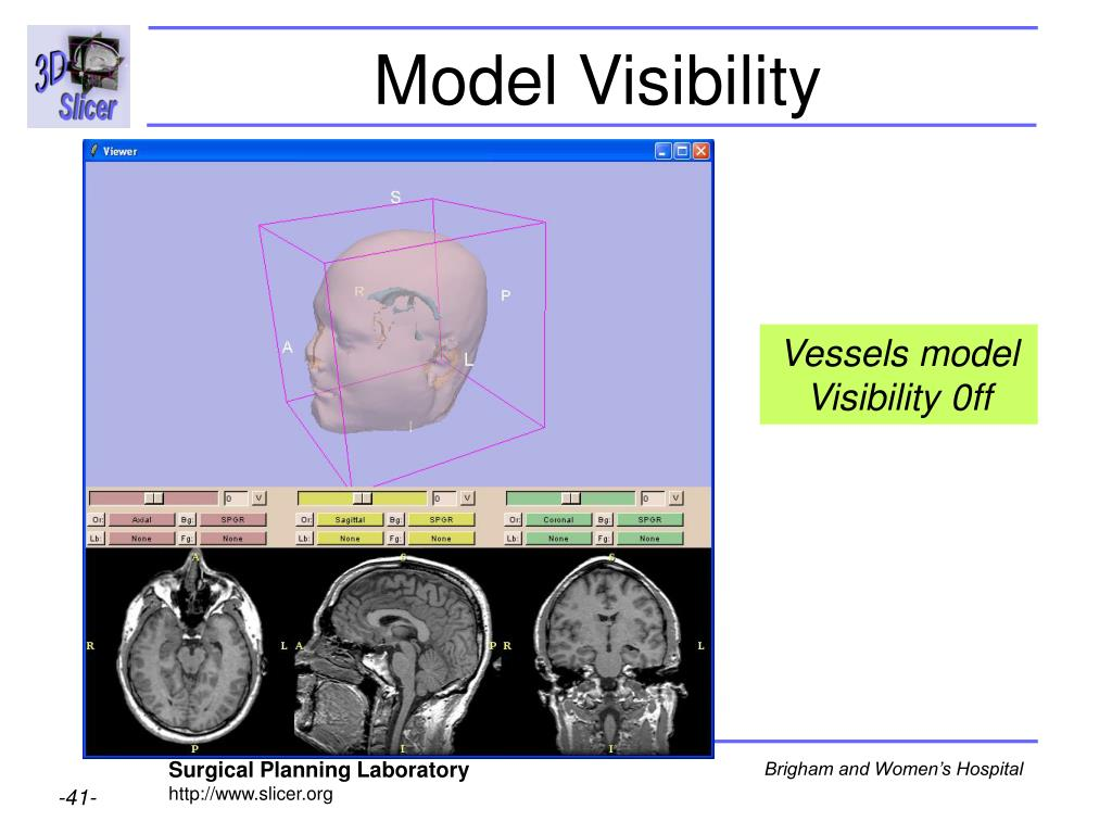 Model Visibility